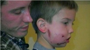 MOUNTAIN LION ATTACKS 6-YEARS OLD BOY